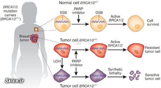 مجله سلامت علائم سرطان پستان سلامت زنان سرطان زنان سرطان پستان Breast cancer