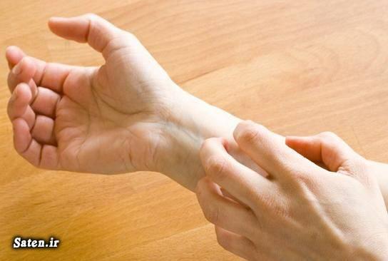 متخصص پوست و مو متخصص آلرژی و ایمونولوژی کهیر آفتابی کرم ضد آفتاب درمان کهیر پوستی
