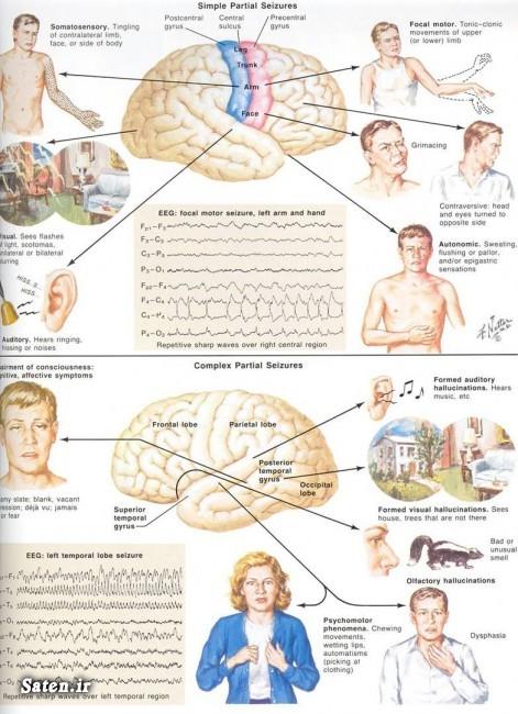 مجله سلامت مجله پزشکی درمان صرع انجمن صرع ایران epilepsy