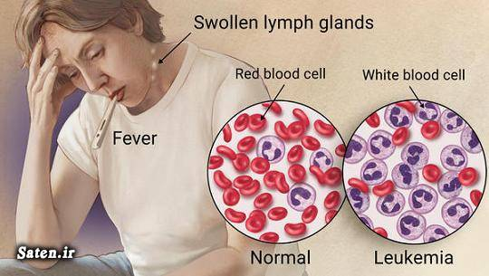 مجله سلامت علائم لوسمی درمان سرطان خون پیشگیری سرطان خون Leukemia