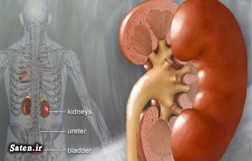 قولنج کلیوی علائم سنگ کلیه رنگ ادرار درمان سنگ کلیه ادرار خونی