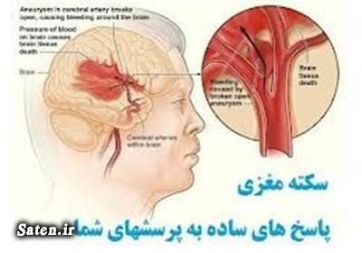 مجله سلامت علائم سکته مغزی پیشگیری سکته مغزی