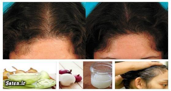 متخصص پوست و مو سلامت مو خواص پیاز تحریک پیاز مو افزایش رشد مو