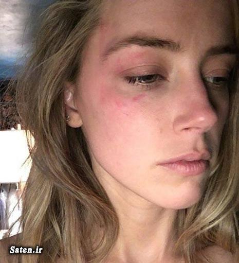 همسر جانی دپ کتک کاری بازیگران بیوگرافی جانی دپ اخبار آمریکا Johnny depp Amber Heard