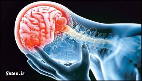 نجات از مرگ مجله پزشکی درمان سکته مغزی پیشگیری سکته مغزی