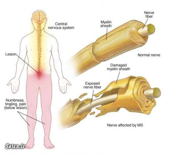 ویتامین دی ویتامین d درمان ام اس خواص قهوه پیشگیری از ام اس بیماری ام اس