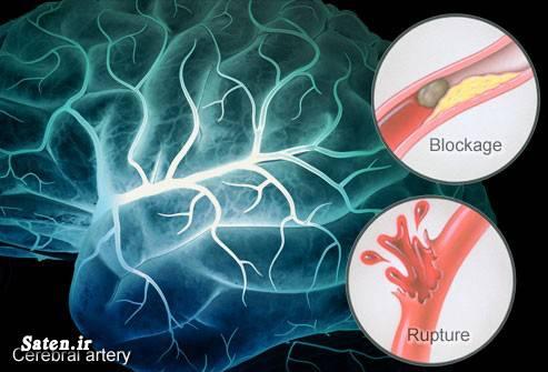 مجله سلامت درمان سکته مغزی پیشگیری سکته مغزی پیشگیری از سکته بهترین رژیم غذایی