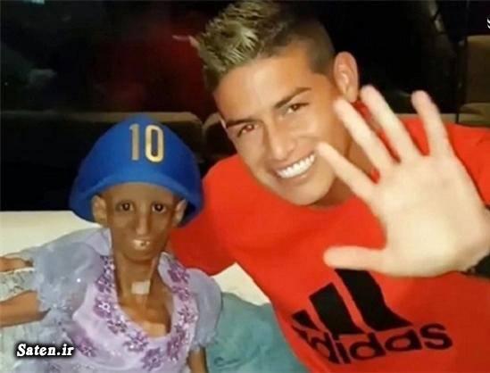 همسر خامس رودریگز دختر کلمبیایی بیوگرافی خامس رودریگز بیماری نادر بیماری عجیب بیماری ژنتیکی اسامی بازیکنان رئال مادرید james rodriguez instagram