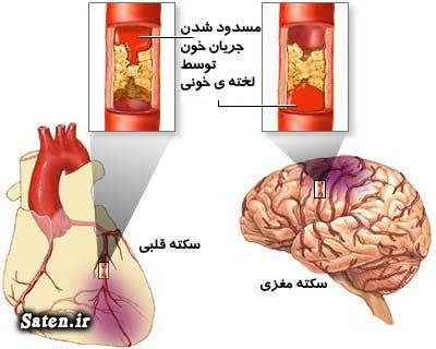 مجله سلامت درمان سکته مغزی درمان سکته قلبی پیشگیری سکته مغزی پیشگیری از سکته