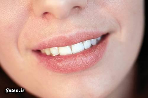 متخصص طب سنتی زیبایی لب زیبایی زنان رژ لب درمان خانگی ترک لب درمان ترک گوشه لب جلوگیری از ترک خوردن