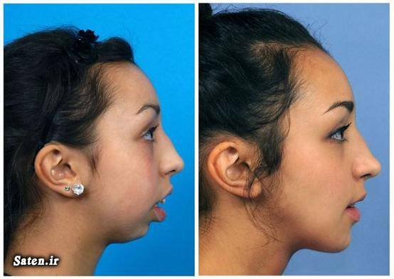 هزینه ارتودنسی متخصص جراحی فک متخصص جراحی زیبایی جراحی زیبایی دماغ جراحی زیبایی بینی جراحی زیبایی ارتودنسی قبل و بعد
