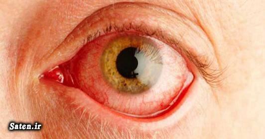 متخصص چشم پزشکی درمان شب کوری درمان آر پی پیشگیری شب کوری بیمارستان فارابی