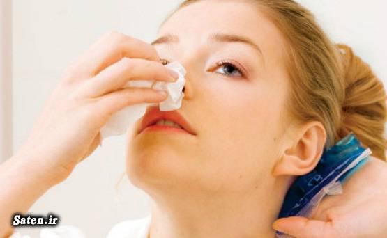 فلفل کاین درمان خانگی بند آوردن خونریزی بینی بند آوردن خون دندان بند آوردن خون