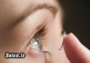 متخصص چشم پزشکی لنزهای چشمی سوابق علی میرزاجانی سلامت چشم بهترین عینک
