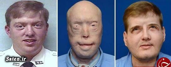 معجزه پزشکی متخصص جراحی زیبایی عکس جراحی زیبایی پیوند صورت پاتریک هاردیسون patrick hardison
