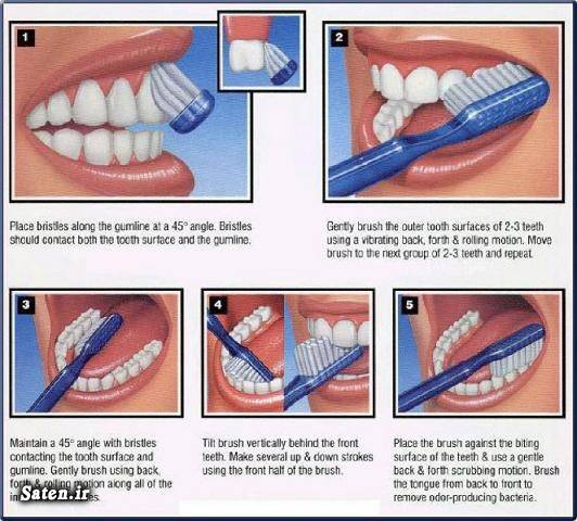 متخصص دندانپزشک زیبایی دندان زمان مسواک زدن روش صحیح مسواک زدن بهداشت دهان و دندان اصول مسواک زدن