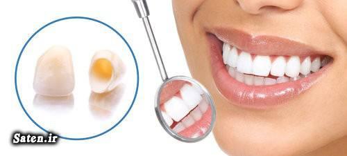 هزینه و تعرفه های دندانپزشکی مجله سلامت قیمت انواع روکش دندان بهداشت دهان و دندان بهترین دکتر دندانپزشک تهران