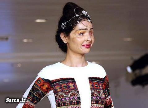 هفته مد نیویورک قربانیان اسید پاشی عکس اسید پاشی زن هندی اخبار هند