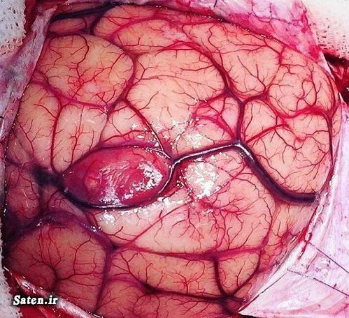 مجله پزشکی علایم سرطان علائم و نشانه تومور مغزی عکس تومور سرطانی پیشگیری از سرطان بزرگترین تومور