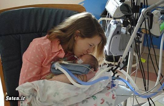 عجیب الخلقه دوران حاملگی دوران بارداری تولد نوزاد عجیب بیماری نادر