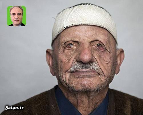 نام دیگر بیماری جذام مجله پزشکی عکس جذامی ها درمان جذام حسین مب جذامیان ایران بیماری خوره بیماری پوستی