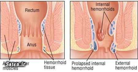 عکس بواسیر طب سنتی شستشوی مقعد رابطه مقعدی سالم رابطه جنسی مقعدی رابطه جنسی از پشت درمان خانگی درمان بواسیر Hemorrhoid