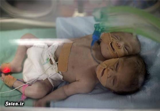 عکس غزه عجیب الخلقه تولد نوزاد عجیب انسان عجیب اخبار فلسطین