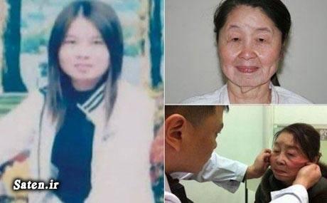 زایمان عجیب زایمان بیماری نادر بیماری عجیب اخبار چین