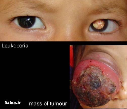 ملانوما مجله پزشکی متخصص چشم پزشکی علت سرطان چشم عکس سرطان چشم سندروم چشم رتینوبلاستوم درمان سرطان چشم پیشگیری از سرطان Eye neoplasm