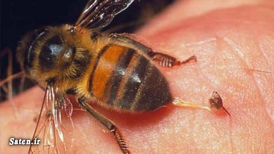 نیش زنبور درمان نیش زنبور درمان خانگی درمان با نیش زنبور عسل