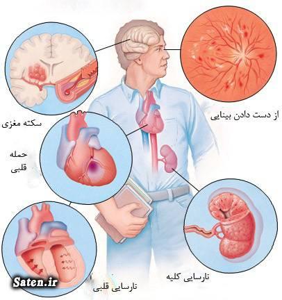 مجله پزشکی درمان فشار خون خواص سیر خواص زردچوبه تنظیم فشار خون