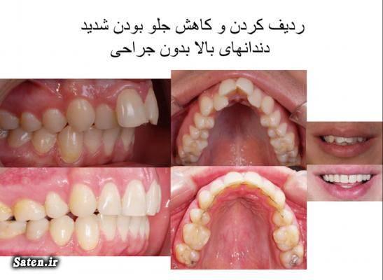 هزینه و تعرفه های دندانپزشکی هزینه ارتودنسی بهداشت دهان و دندان ارتودنسی قبل و بعد