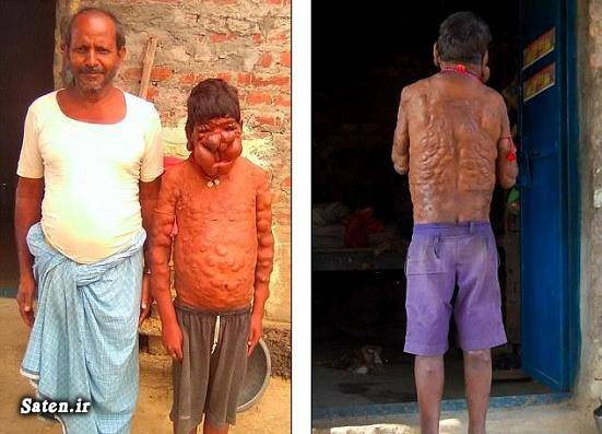 نوروفیبروم عکس تومور سرطانی بیماری عجیب بزرگترین تومور انسان عجیب اخبار هند آدم عجیب neurofibroma