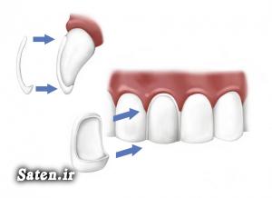 هزینه و تعرفه های دندانپزشکی هزینه ارتودنسی لمینت دندان چیست قیمت لمینت دندان سفید کردن دندان زیبایی دندان جرم و پلاک دندان ارتودنسی