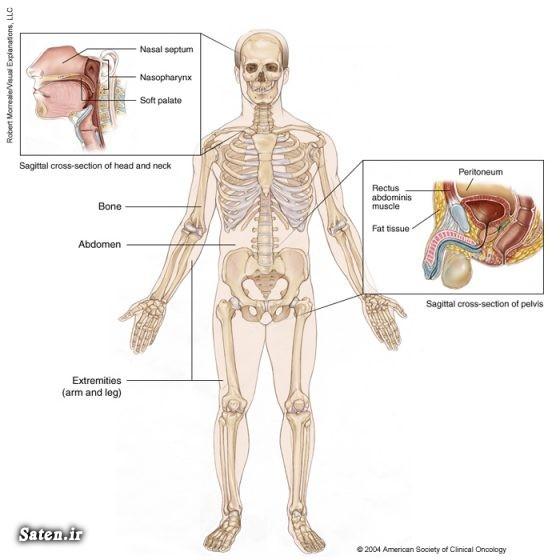 مجله پزشکی درمان سرطان درمان سارکوم داروی ضدسرطان پیشگیری از سرطان بیماری بازیگران انواع سرطان سارکوم