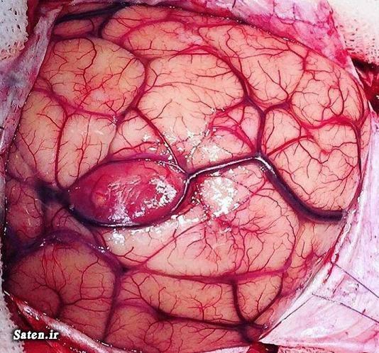 نشانه سرطان مجله پزشکی علایم سرطان علائم و نشانه تومور مغزی عکس تومور سرطانی