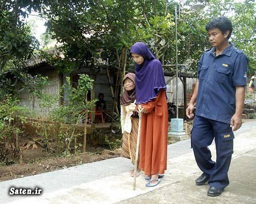 زن اندونزیایی بیماری نادر بیماری ژنتیکی اختلال ژنتیکی اخبار اندونزی