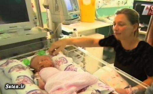 عجیب الخلقه زن استرالیایی تولد نوزاد عجیب بیماری نادر انسان عجیب اخبار استرالیا