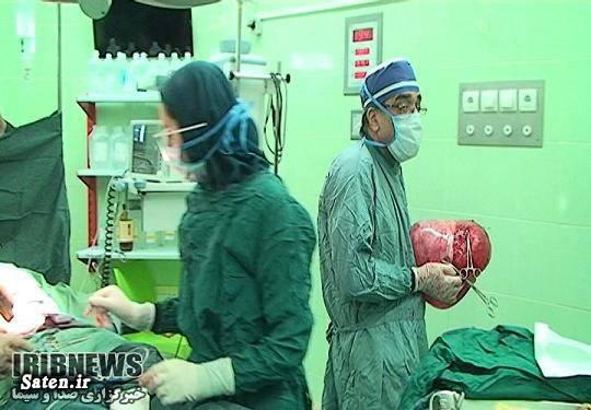 جراحی کیست تخمدان اندازه کیست تخمدان