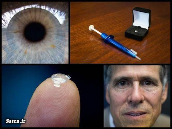 مجله پزشکی متخصص چشم پزشکی لنزهای چشمی لنز چشم طبی تقویت چشم Ocumetics