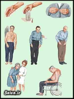 مجله پزشکی متخصص مغز و اعصاب عمل جراحی پارکینسون طب سنتی دکتر منصور پرورش درمان پارکینسون پارکینسون طب سنتی Parkinson