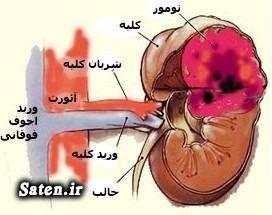نشانه سرطان کلیه مجله پزشکی علایم سرطان علائم و نشانه تومور مغزی تشخیص سرطان پیشگیری از سرطان