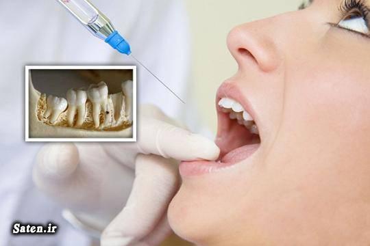 هزینه و تعرفه های دندانپزشکی هزینه کشیدن دندان عقل درمان دندان درد درد دندان عقل بهترین دکتر دندانپزشک تهران