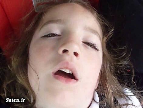 مجله سلامت متخصص چشم پزشکی علت خوابیدن با چشم نیمه باز علت باز ماندن چشم در خواب