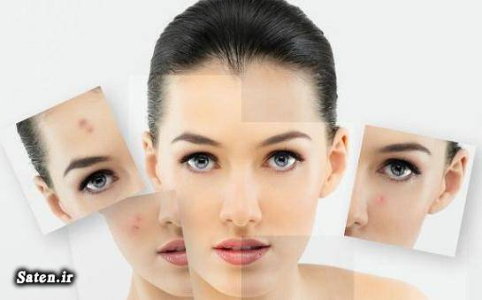 درمان فوری جوش صورت درمان سریع آکنه درمان جوش صورت با طب سنتی درمان آکنه Home Remedies for Acne