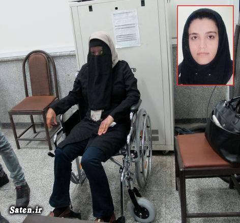 قربانیان اسید پاشی عکس اسید پاشی حوادث تهران حسادت زنانه اسید پاشی تهران اخبار جنایی