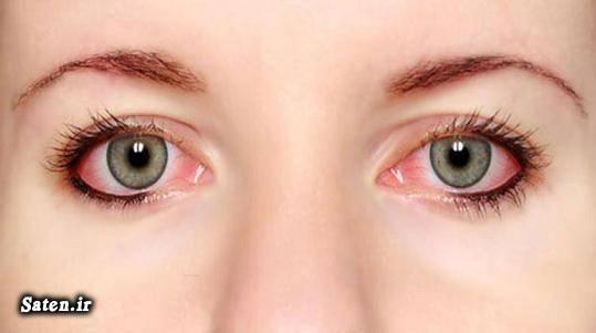 قطره برای رفع قرمزی چشم علت قرمزی چشم طب سنتی درمان فوری قرمزی چشم درمان خانگی