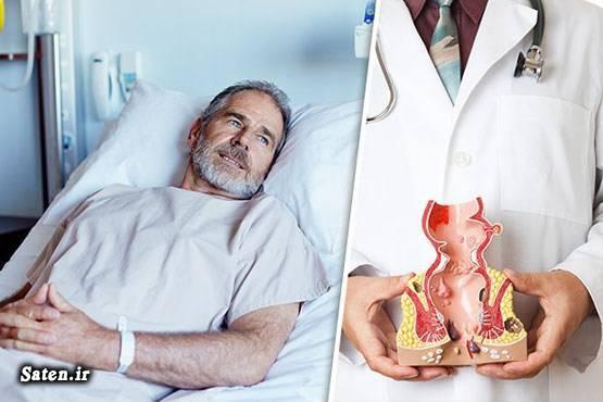 مجله پزشکی علت ترشحات مقعدی علایم سرطان علائم سرطان مقعد عکس سرطان مقعدی پیشگیری از سرطان
