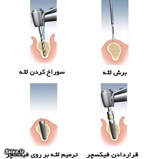 مراحل ایمپلنت دندان قیمت ایمپلنت دندان عوارض ایمپلنت دندان عکس ایمپلنت دندان دندانپزشکی خوب در تهران بهترین دکتر دندانپزشک تهران آیا ایمپلنت درد دارد