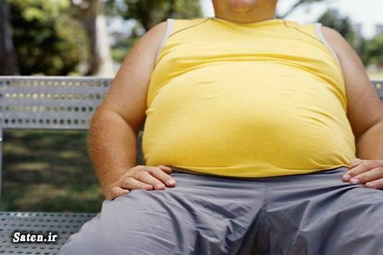 هزینه جراحی چاقی مضرات چاقی عمل جراحی بای پس معده درمان چاقی پیشگیری از چاقی بهترین عمل جراحی لاغری بهترین دکتر جراحی لاغری